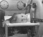 Little girl in an iron lung